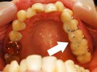 歯形の分析